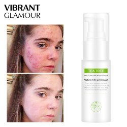 Vibrant Glamour tea tree acne repair water. Dumding acne acne pit control toner