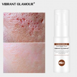 Vibrant Glamour crocodile repair water. Dilution acne marking